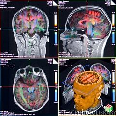 Advanced MRI brain scans