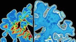 Dementia research