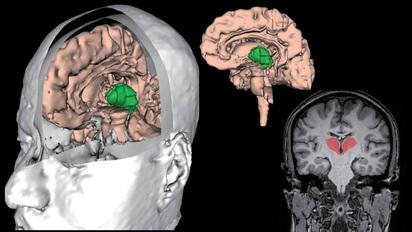 vbm brain